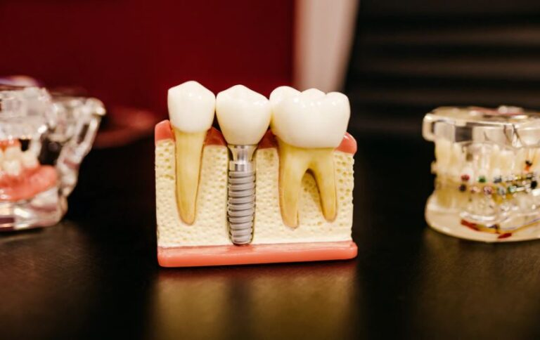 What Are The Types Of Dental Implant Techniques That Experts Use In Texas?